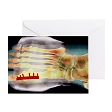 Big toe after bunion surgery, X-ray Greeting Card