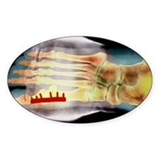 Big toe after bunion surgery, X-ray Decal