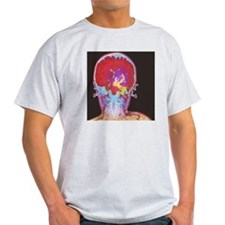 Brain cancer MRI T-Shirt