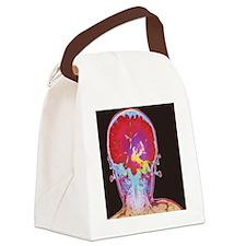 Brain cancer MRI Canvas Lunch Bag