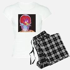 Brain cancer MRI Pajamas