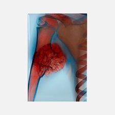 Bone tumour, X-ray Rectangle Magnet