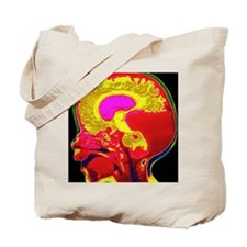 Brain cyst in child Tote Bag