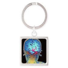 Brain cancer MRI Square Keychain