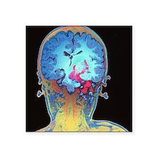 """Brain cancer MRI Square Sticker 3"""" x 3"""""""