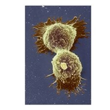 Breast cancer cells Postcards (Package of 8)
