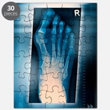Bunion, X-ray Puzzle