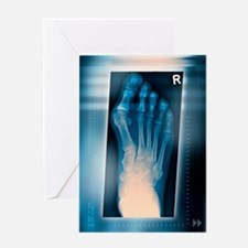 Bunion, X-ray Greeting Card