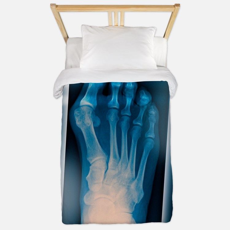 Bunion, X-ray Twin Duvet