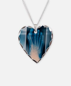Bunion, X-ray Necklace