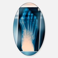 Bunion, X-ray Decal
