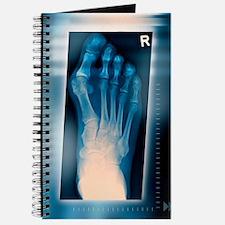 Bunion, X-ray Journal