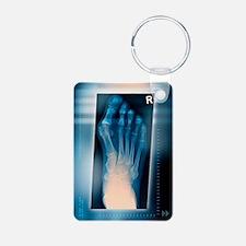 Bunion, X-ray Keychains