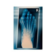 Bunion, X-ray Rectangle Magnet