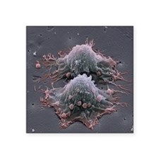"""Cancer cell division Square Sticker 3"""" x 3"""""""