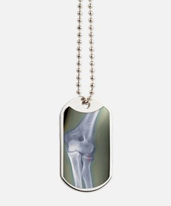 Broken arm, X-ray Dog Tags
