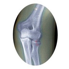 Broken arm, X-ray Oval Ornament