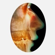 Broken nose, X-ray Oval Ornament