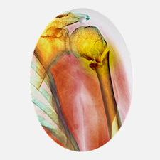 Broken upper arm bone, X-ray Oval Ornament