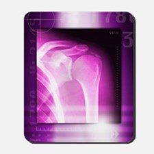 Calcified shoulder joint, X-ray Mousepad