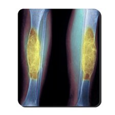 Brown tumours, X-ray Mousepad