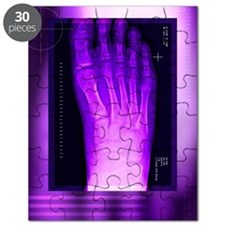 Bunion after surgery, X-ray Puzzle