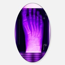 Bunion after surgery, X-ray Decal