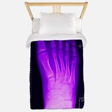 Bunion after surgery, X-ray Twin Duvet