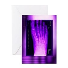 Bunion after surgery, X-ray Greeting Card