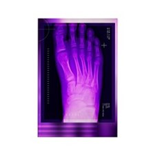 Bunion after surgery, X-ray Rectangle Magnet