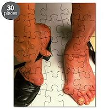 Bunions Puzzle