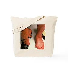 Bunions Tote Bag