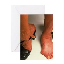 Bunions Greeting Card