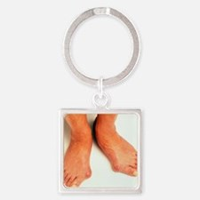 Bunions Square Keychain