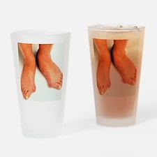 Bunions Drinking Glass