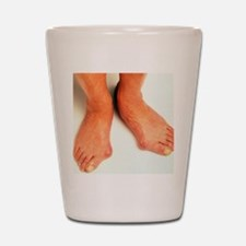 Bunions Shot Glass