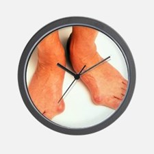 Bunions Wall Clock