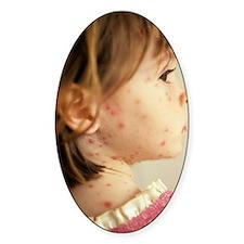 Chickenpox Decal