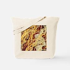 Cigarette filter, SEM Tote Bag