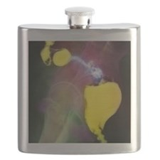Colon cancer Flask