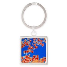 Col TEM of HIV viruses budding fro Square Keychain