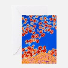Col TEM of HIV viruses budding from  Greeting Card