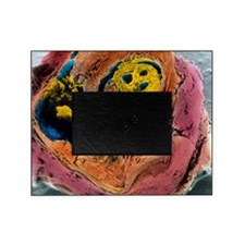 Colour SEM of atherosclerosis in cor Picture Frame