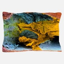 Colour SEM of atherosclerosis in coron Pillow Case