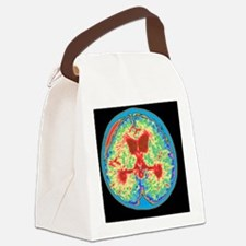 Coloured MRI brain scan of absces Canvas Lunch Bag