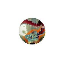Colon diverticula, X-ray Mini Button
