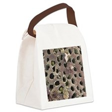 Colon cancer, SEM Canvas Lunch Bag