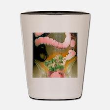 Colon diverticula, X-ray Shot Glass