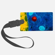 Colour TEM of primary lysosome i Luggage Tag