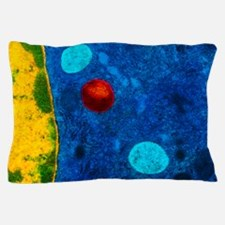 Colour TEM of primary lysosome in live Pillow Case